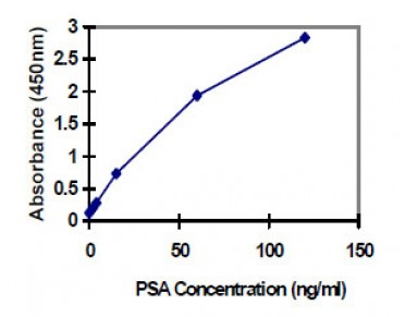 Prostate Specific Antigen (PSA) ELISA Kit (Human) : 96 Wells (OKBA00022) in using KIT
