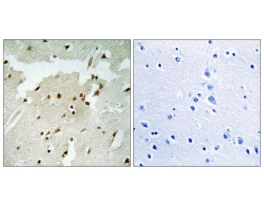 Ku70 Antibody (Phospho-Ser5) (OAAF07362) in Paraffin-embedded human lung carcinoma using Immunohistochemistry