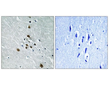SF1 Antibody (Phospho-Ser82) (OAAF00111) in human brain using Immunohistochemistry.
