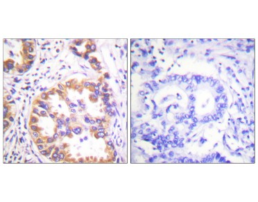 TSC2 Antibody (Phospho-Ser939) (OAAF00116) in human lung carcinoma using Immunohistochemistry.