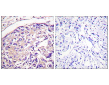 Tuberin/TSC2 Antibody (Phospho-Thr1462) (OAAF07450) in Paraffin-embedded human breast carcinoma using Immunohistochemistry