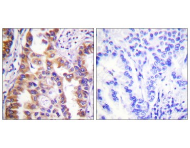 TSC2 Antibody (OAAF00852) in human lung carcinoma tissue using Immunohistochemistry.