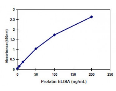 Prolactin ELISA Kit (Human) : 96 Wells (OKBA00021) in using KIT