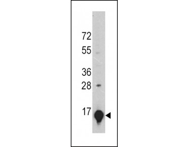 GLT antibody (GWB-L97YV7) in A375 using Western Blot